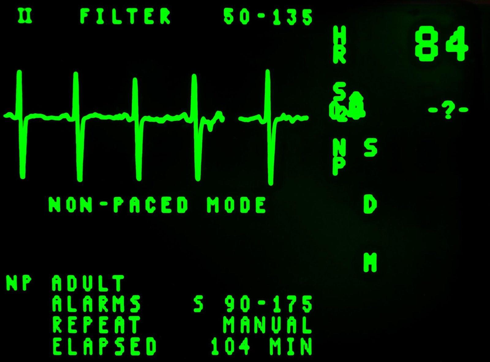 Electrocardiogram EKG