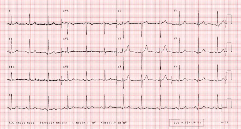 Electrocardiógrafo Diagrama